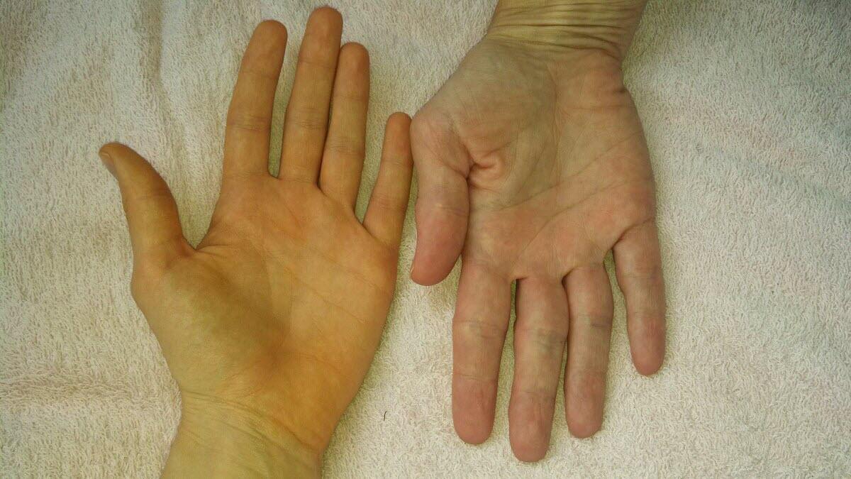 Диагностика цирроза печени в домашних условиях