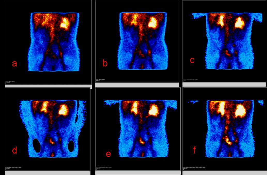 Признаки цирроза печени на сцинтиграфии при диагностике