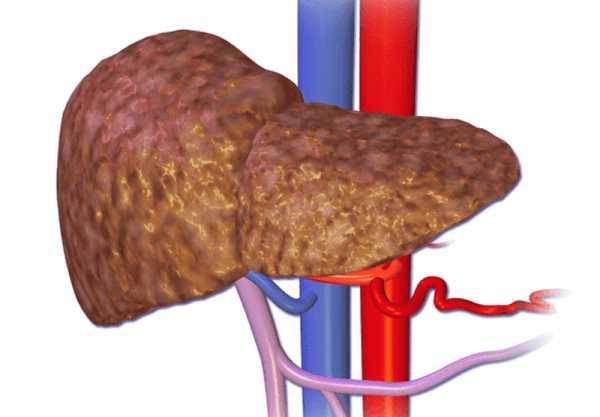 Диагностика цирроза печени: описание процедур