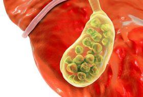 Хронический холецистит: что это такое и как лечить