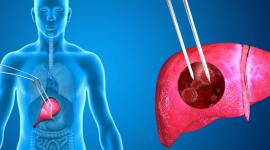 Хронический гепатит С: признаки у мужчин и женщин