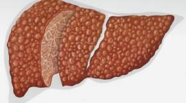 Билиарный цирроз: что это, виды, признаки
