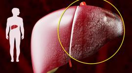 Аутоиммунный гепатит: что это такое, признаки, лечение и прогноз