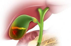 Воспаление желчного пузыря: что это такое и как лечить