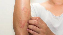 Первичный склерозирующий холангит: диагностика и лечение