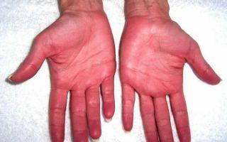 Печеночные ладони: механизм появления, лечение