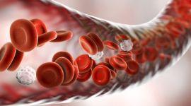 Болезнь Бадда-Киари: тромбоз воротной вены