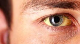 Гипербилирубинемия: симптомы и лечение