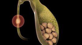 Камни в желчных протоках даже после удаления желчного пузыря