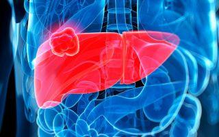 Цирроз печени – это рак или нет