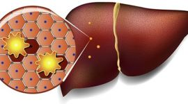 Лечение жирового гепатоза (стеатоза) печени лекарствами