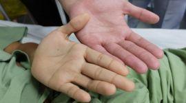 Гемолитическая желтуха: что это такое, симптомы, как лечить
