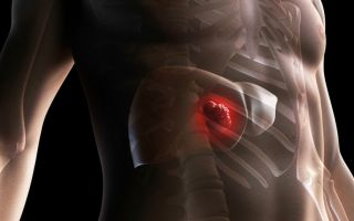 Липоматоз печени: симптомы, как избавиться от липом