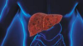 Рак печени: степени, проявления у мужчин и женщин