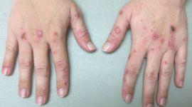 Болезнь порфирия: симптомы приступа и лечение