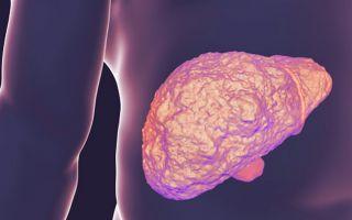 Лечение цирроза печени: как и чем лечить заболевание