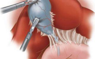 Лапароскопическая холецистэктомия: послеоперационный период, осложнения
