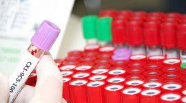 Гемохроматоз (бронзовый диабет): как лечить, диета