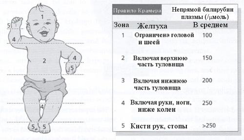 Виды желтухи у новорожденных
