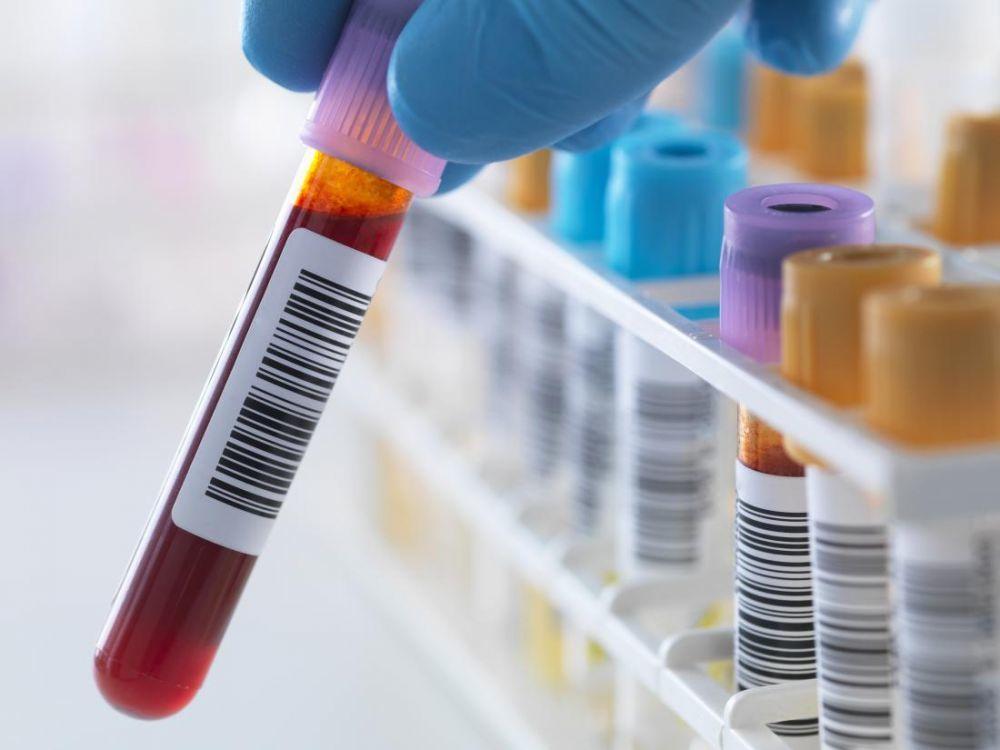 Анализ крови на РНК вируса гепатита С