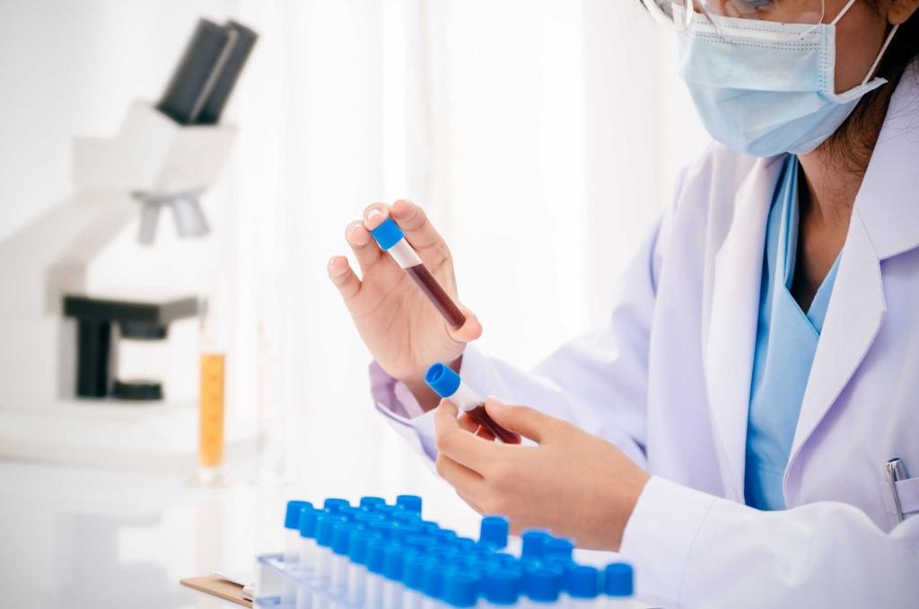 Анализ на гепатит Е