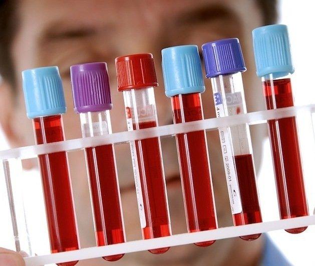 Анализы на гепатит G