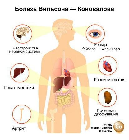 Формы болезни Вильсона-Коновалова