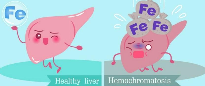 Гемохроматоз что это такое