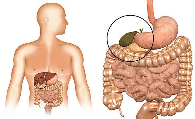 Холестаз при гепатозе у беременных