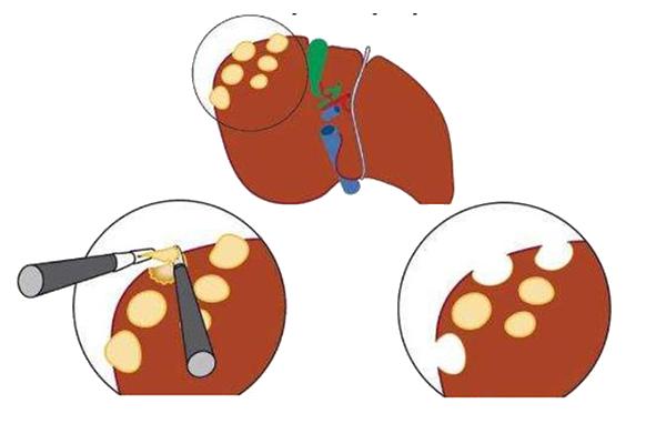 Лечение кисты в печени