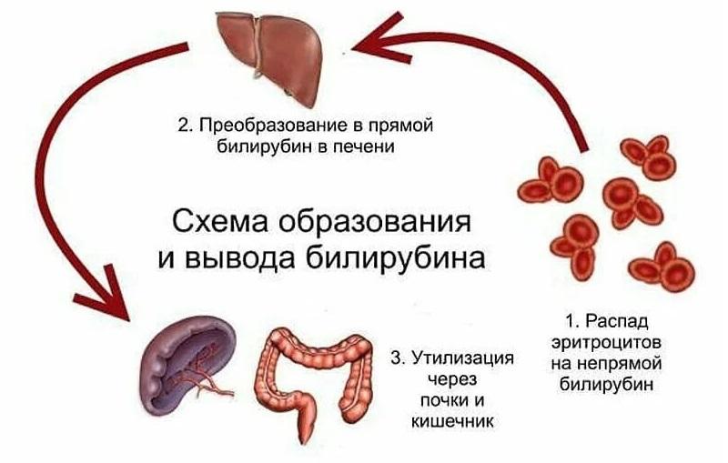 Причины гипербилирубинемия