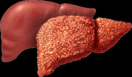 Стадии развития цирроза печени у мужчин