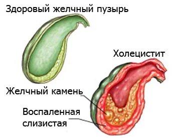 Бескаменный холецистит