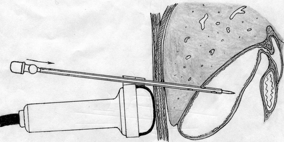 Чрескожная чреспеченочная холецистостомия для удаления желчного пузыря