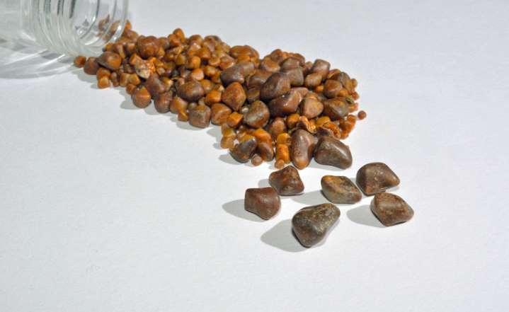Камни в желчном пузыре без операции