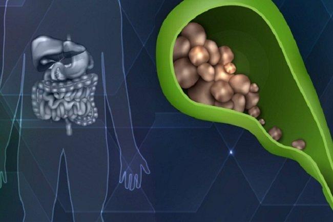Когда камни в желчном пузыре можно лечить без операции