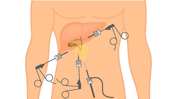 Миниинвазивная открытая холецистэктомия для удаления желчного пузыря
