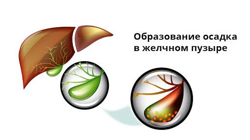 Осадок в желчном пузыре на УЗИ