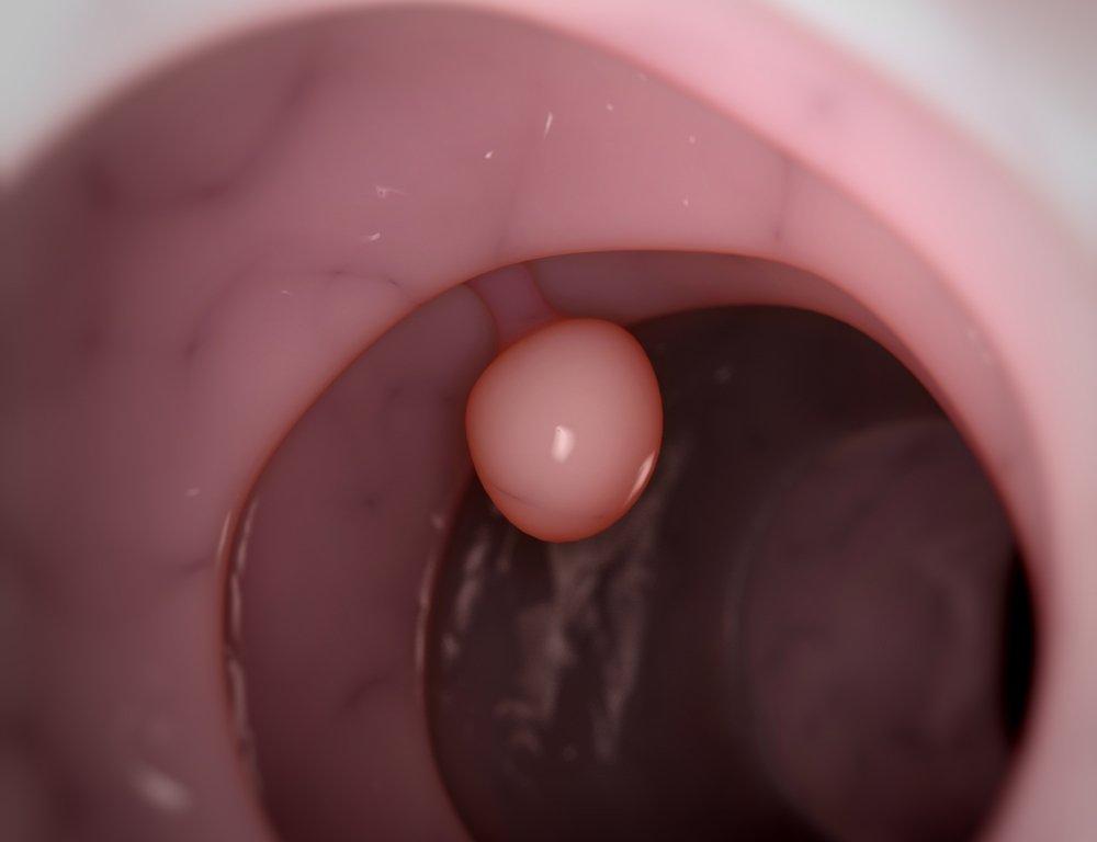 Полипы в желчном пузыре