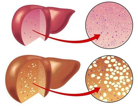 Последствия липоматоза печени