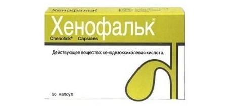 Препараты с хенодезоксихолевой кислотой для удаления камней из желчного пузыря