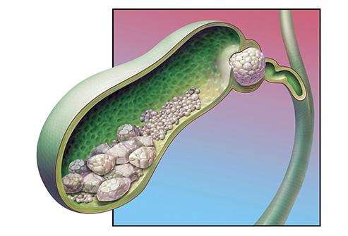 Причины появления портальной гипертензии