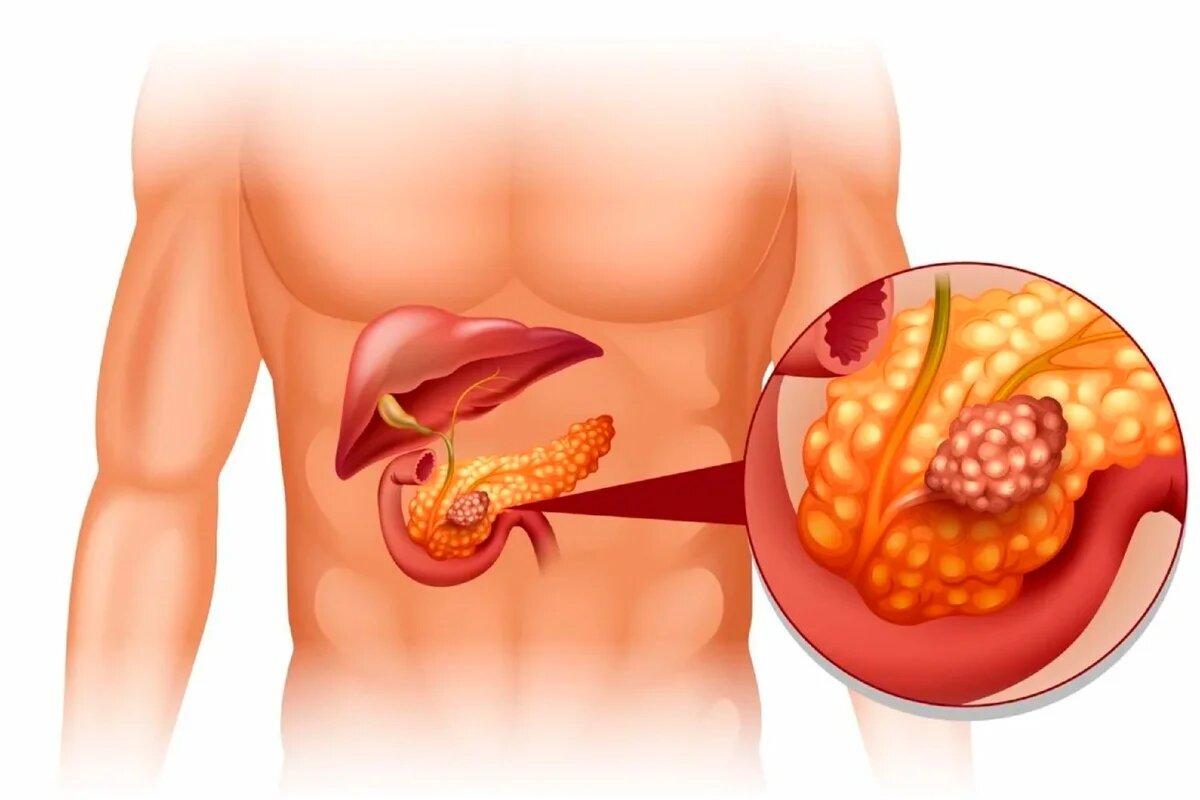 Причины развития билиарного панкреатита