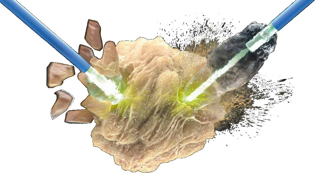 Удаление камней из желчного пузыря лазером