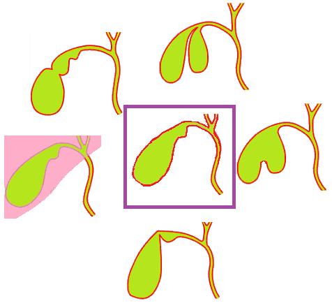 Виды деформации желчного пузыря